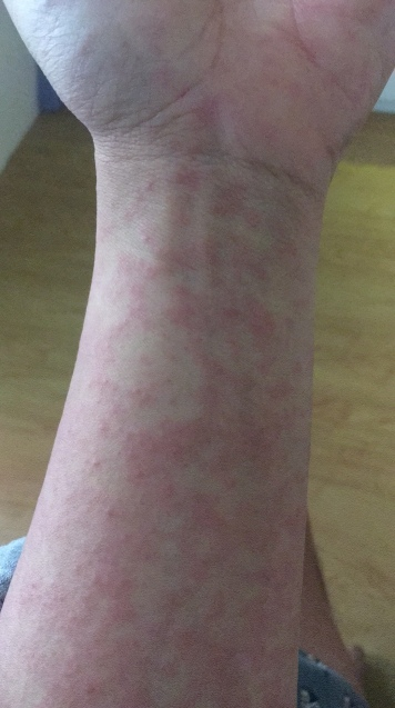 Ruam-ruam pertama muncul di tangan, diikuti dengan ruam di seluruh tubuh.