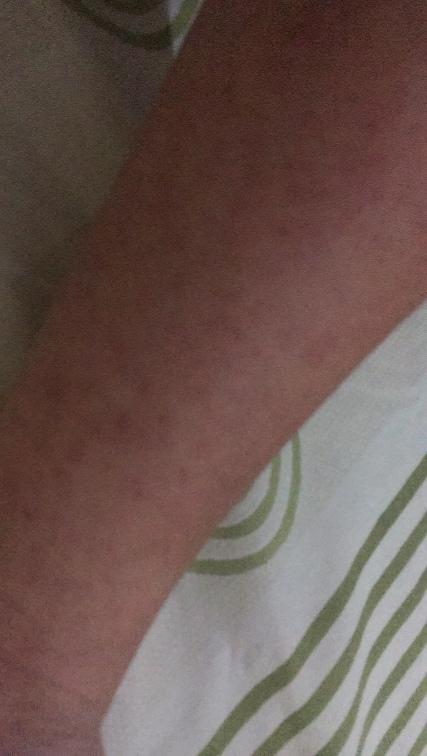 Ruam-ruamnya semakin meluas, hingga permukaan kulit menjadi merah.